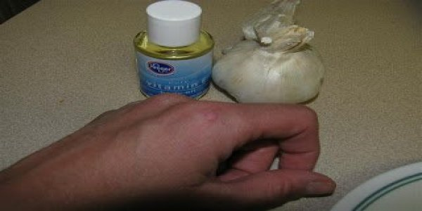 Effective Wart Remover